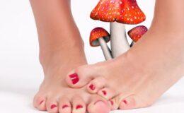 lábgomba kezelése